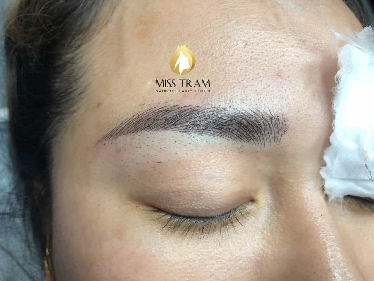 Before and After Results of Treatment of Red Eyebrow and Sculpting Queen 9D 4