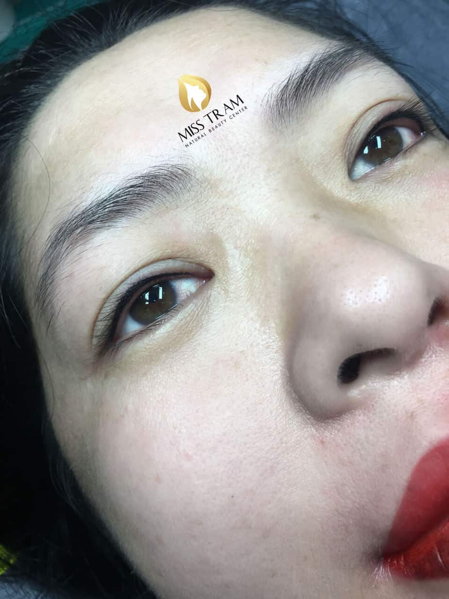 Before And After Spraying Eyelids Opening Lenses Create Standard Eyelid Contour 4