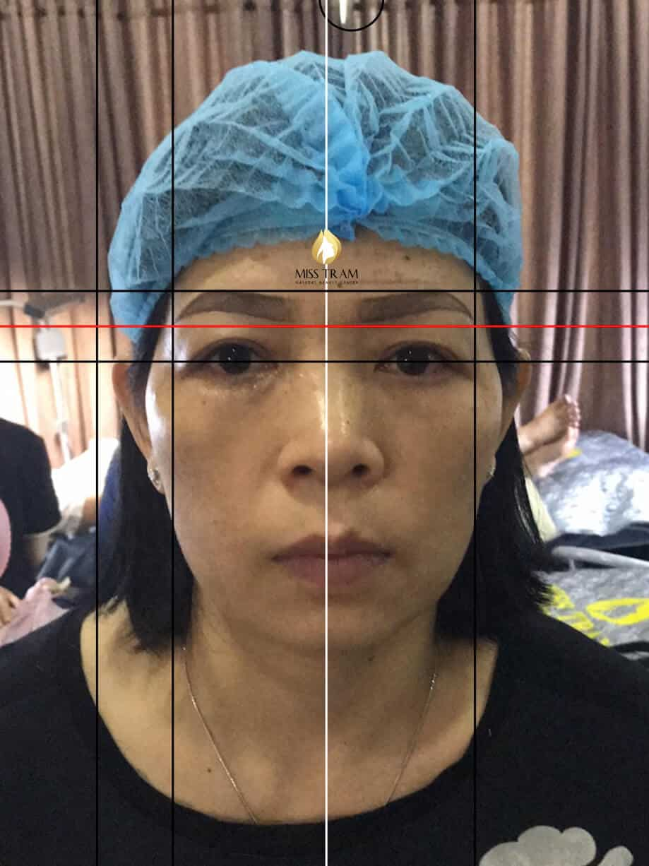 Before and After Results Sculpting You Scrape Natural Fiber 3