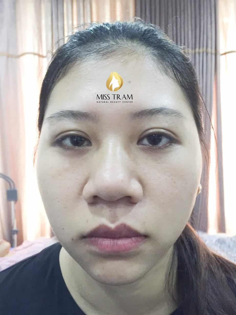 Before and After Technology Sculpting Eyebrow Shaping Naturally Beautiful 2