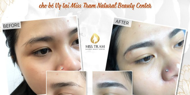 Before and After Beauty by Sculpting Technology Edit Eyebrow Part 1