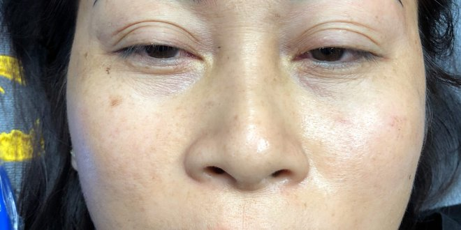 Before And After Treatment - Sculpture Combined Eyebrow Powder Spray 1
