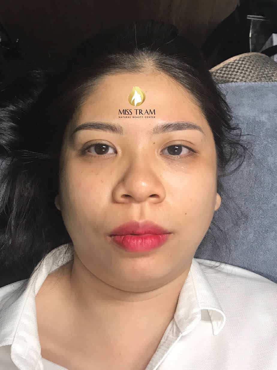 Before And After Results Sculpting Eyebrow Shaping Shaping Beautiful Standard Harmony 5
