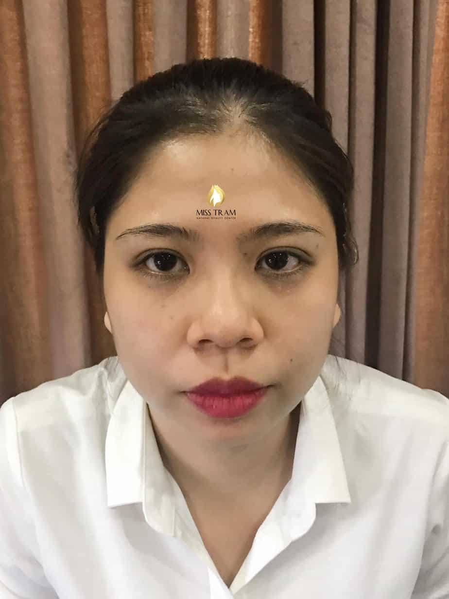 Before and After Results Sculpting Eyebrows Create Beautifully Composed Eyebrows 2