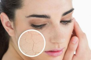 What Dryness Should Be Covered by Dry Skin 7