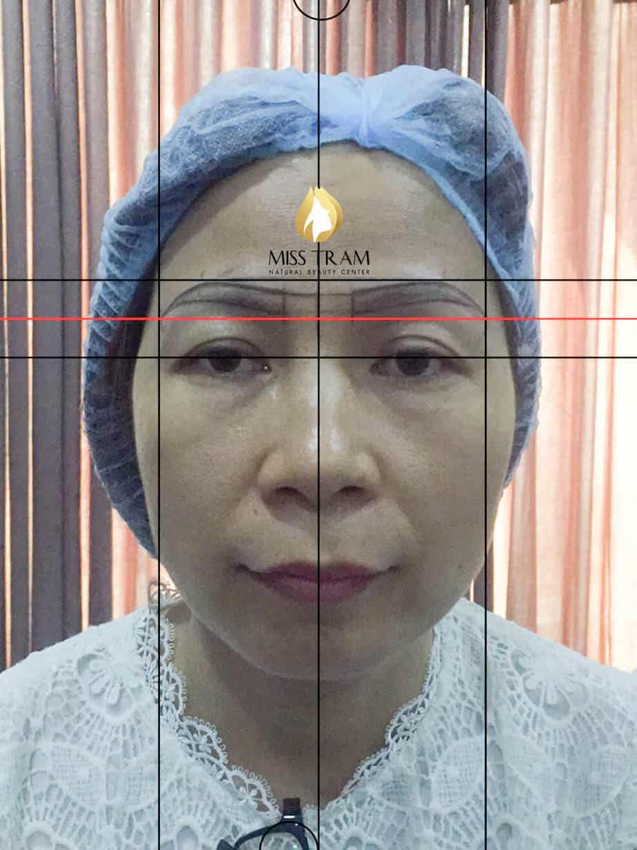 Before and After Sculpting Eyebrow Scraping Fiber Remedy Dear Eyebrow 3