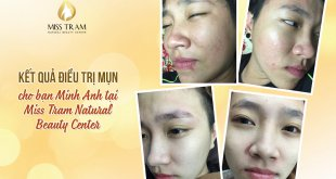 Before and After Acne Treatment with Combined Traditional Medicine 48