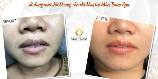Before And After Deep Treatment And Sculpting Queen's Lips 1