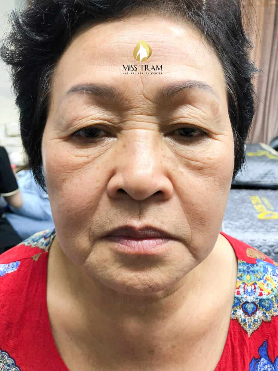 Before And After Processing Old Eyebrows - Head Sculpting With Puff Powder For Women 2