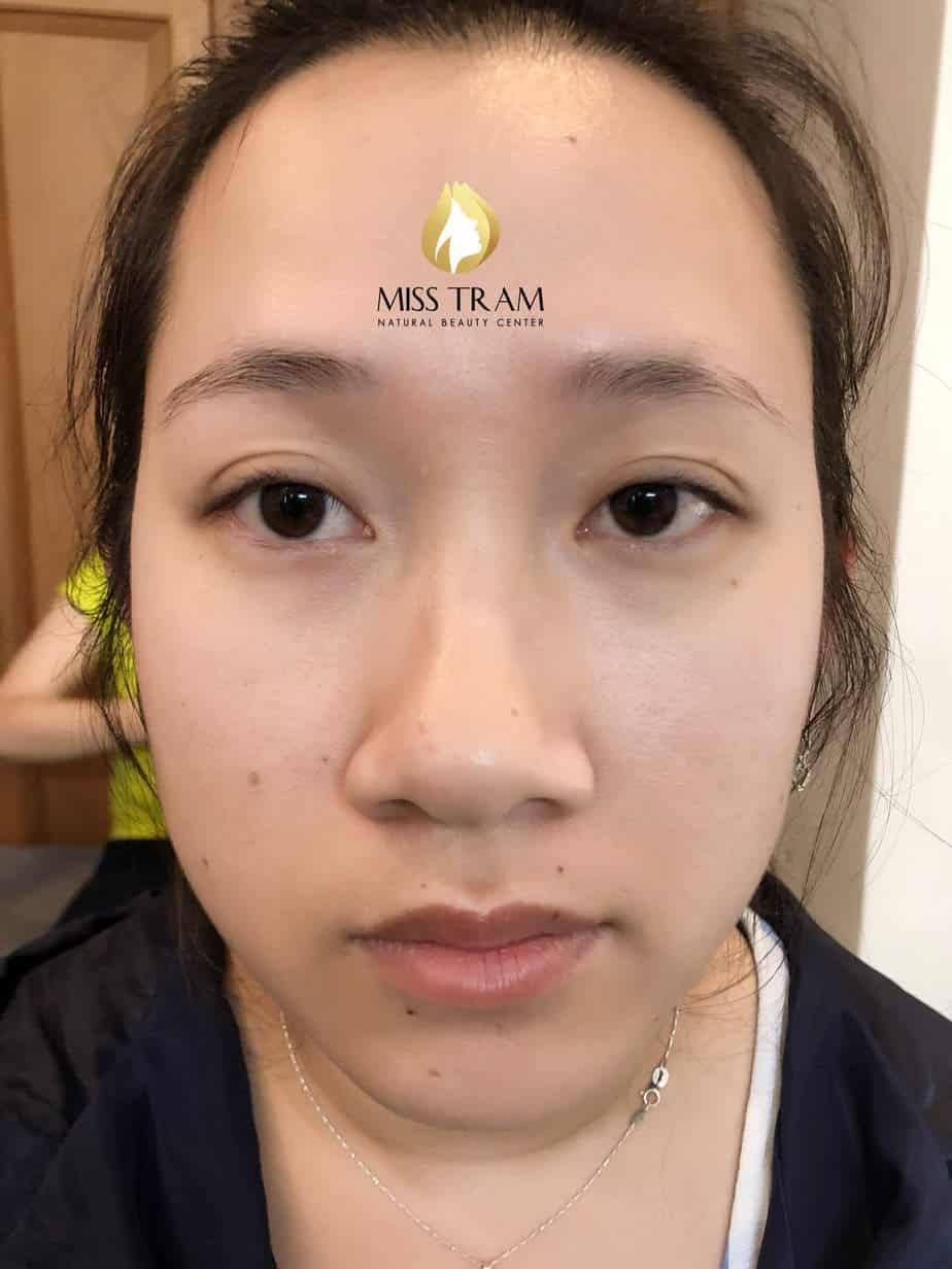 Before and After Performing Female Eyebrow Sculpture 2