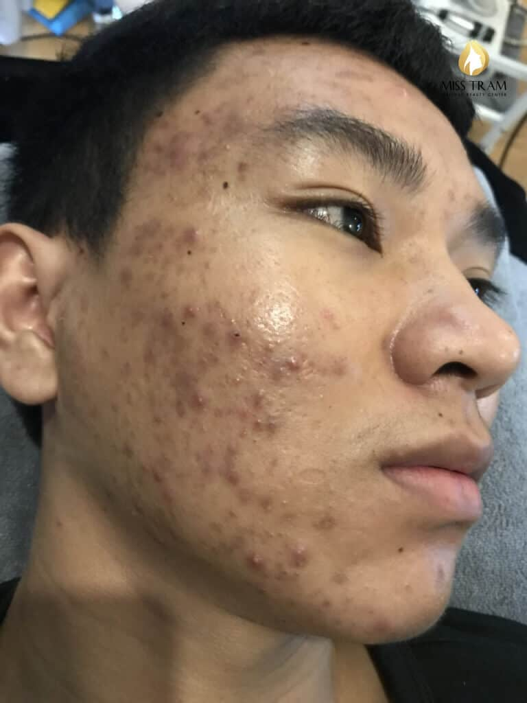 Before and After Treatment of Acne Headless Acne Treatment for Men 2