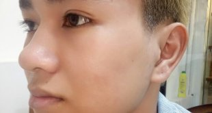 Before and After Treatment of Acne Headless Acne Treatment for Men 57