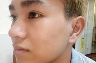 Before and After Treatment of Acne Headless Acne Treatment for Men 1