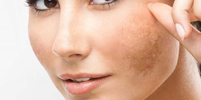 How to Counsel and Treat Melasma for Customers 1