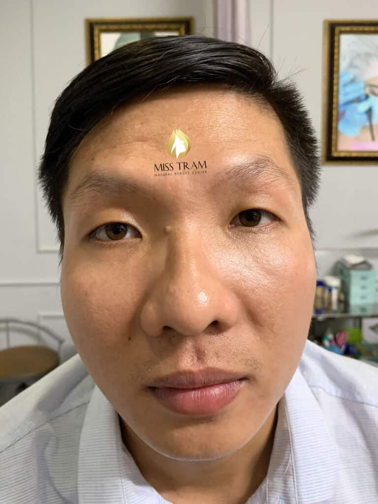 Before And After Sculpture Male Eyebrows Create Male Standard Eyebrow Shapes 2