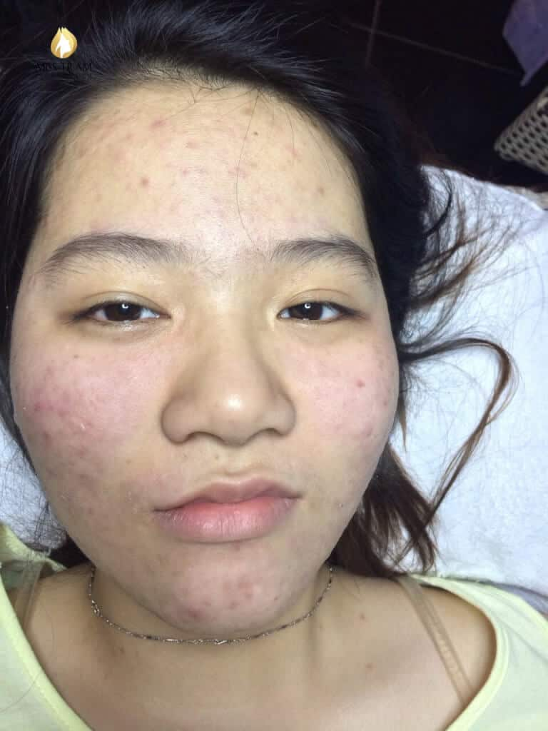 Before and After Results of Acne Treatment Technology at Spa 2