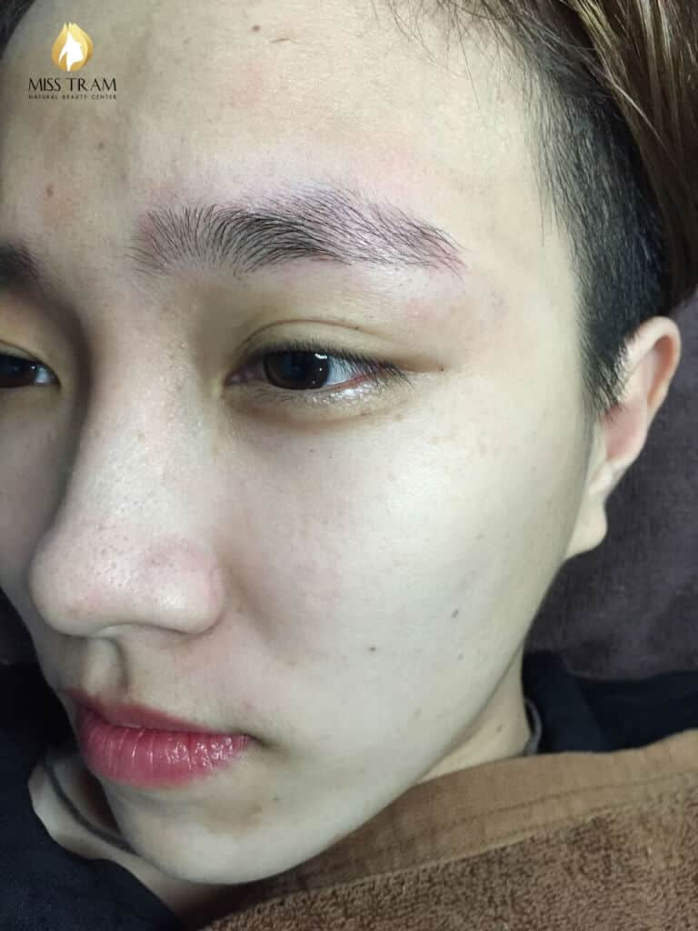 Before and After Acne Treatment With Combined Traditional Medicine 5