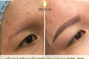 Before And After Sculpting Eyebrow For Oily Skin - Acne At Spa 11