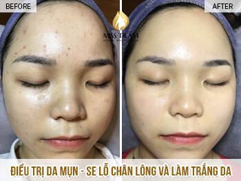 Before and After Acne Skin Treatment - Seize Pores and Skin Whitening 1