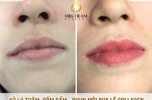 Trước Và Sau Xử Lý Thâm, Phun Môi Pha Lê Collagen Đẹp Tự Nhiên Cho Nữ 12