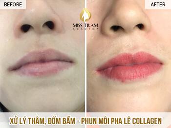 Trước Và Sau Xử Lý Thâm, Phun Môi Pha Lê Collagen Đẹp Tự Nhiên Cho Nữ 1