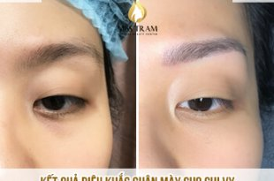Before and After Sculpting Eyebrow Scraping Create Beautiful Standard Eyebrow 21