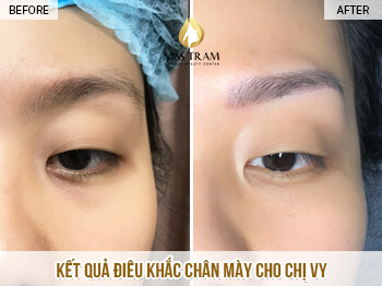 Before and After Sculpting Eyebrow Scraping Create Beautiful Standard Eyebrow 1