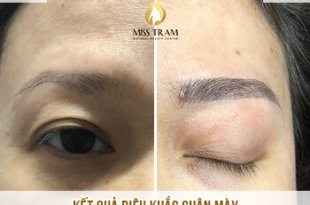 Before and After Beauty Sculpting Beauty Queen For Women 25