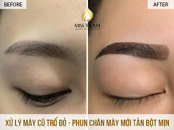Before And After Treatment Of Old Eyebrow And Red Eyebrow Spray 1