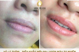 Trước Và Sau Xử Lý Thâm - Điêu Khắc Môi Collagen Đẹp Cho Nữ 8