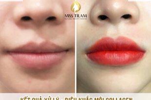 Trước Và Sau Xử Lý Và Điêu Khắc Môi Collagen Khắc Phục Môi Nhạt Màu 4