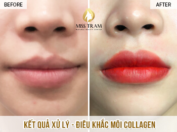 Before And After Treatment And Sculpting Lips Collagen Remedy Pale Lips 1