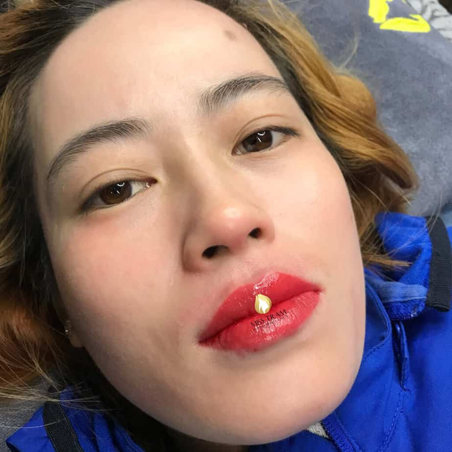 Before And After Intensive Treatment, Spraying Naturally Beautiful Collagen Crystal Lips For Women 3