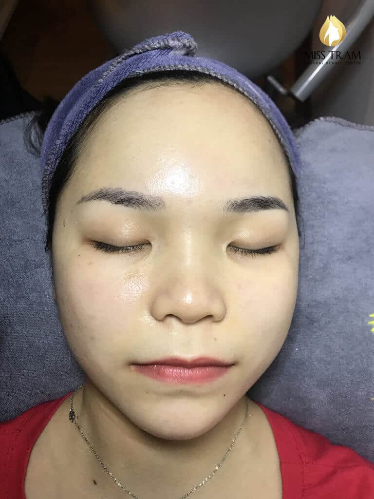 Before and After Acne Skin Treatment - Seize Pores and Skin Whitening 5