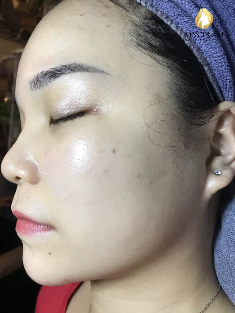 Before and After Acne Skin Treatment - Seize Pores and Skin Whitening 6
