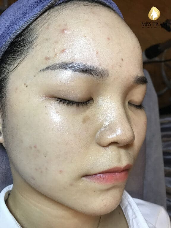 Before and After Acne Skin Treatment - Seize Pores and Skin Whitening 3