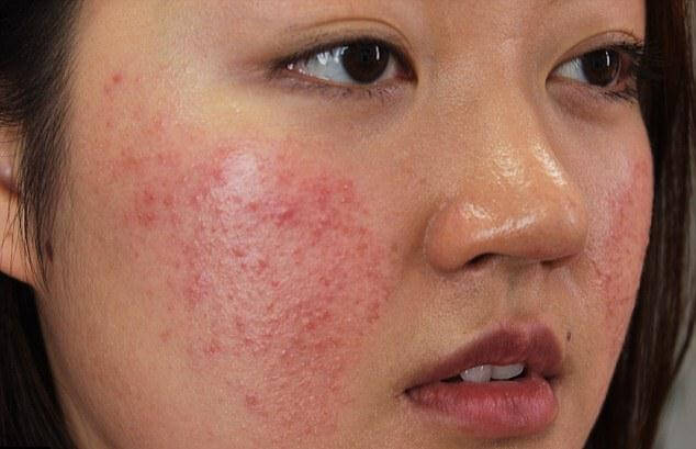Identifying Cosmetic Allergies and Treatment 2