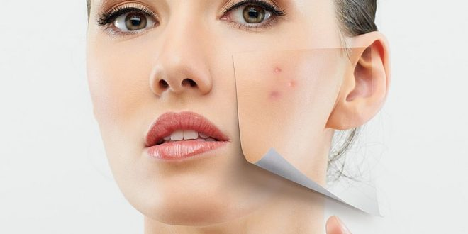 Identifying Cosmetic Allergies and Treatment 1