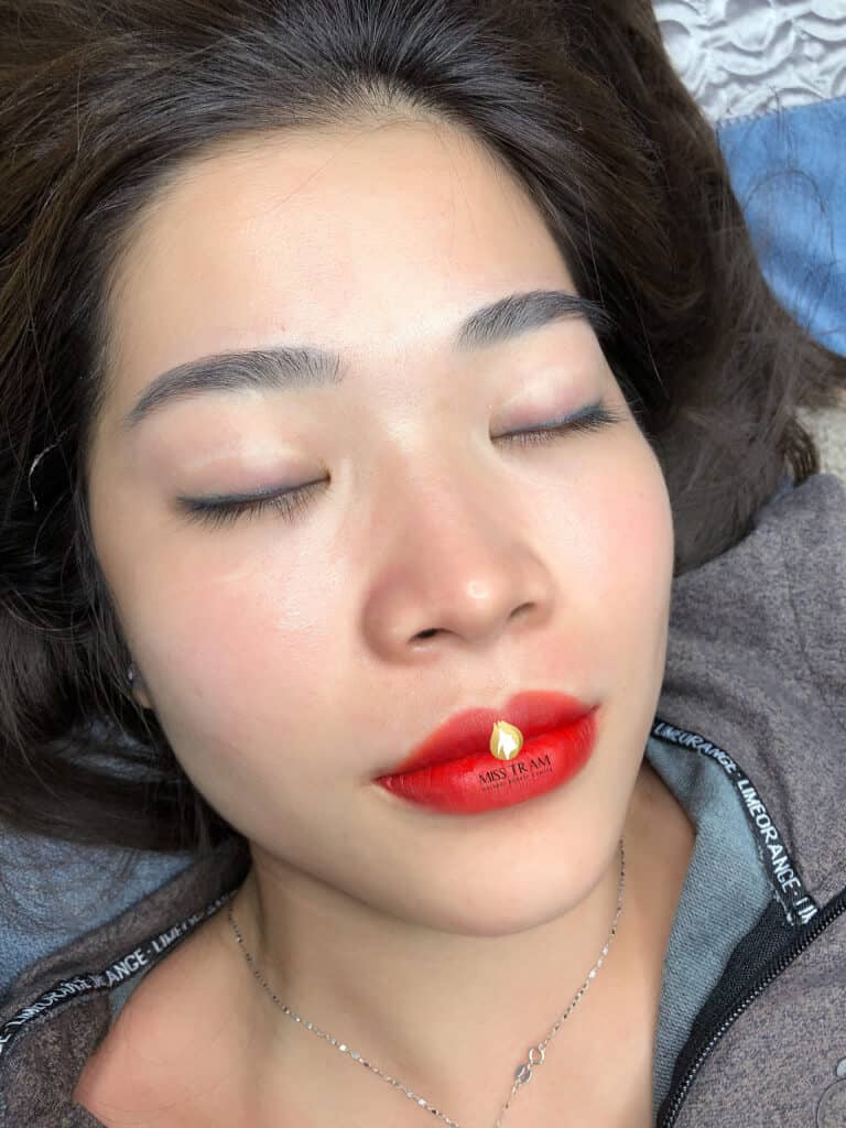 Before And After Treatment And Sculpting Lips Collagen Remedy Pale Lips 3