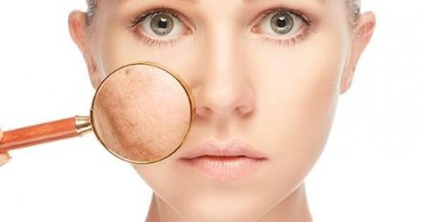 Instructions on how to choose a good Melasma Facial Cream 1