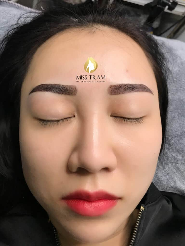 Before And After Treatment Of Old Eyebrow And Red Eyebrow Spray 5