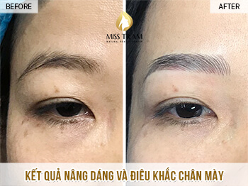 Before And After Lifting Your Face - Sculpting Beautiful Eyebrows for Women 1