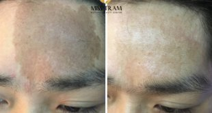 Before and After Results of Deletion with Yag Laser 34 Technology