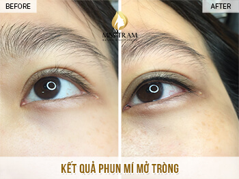Before and After Results of Beautiful Eyelid Spray for Women 1