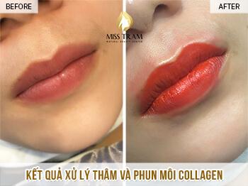 Trước Và Sau Kết Quả Xử Lý Thâm - Phun Môi Collagen Cho Nữ 1
