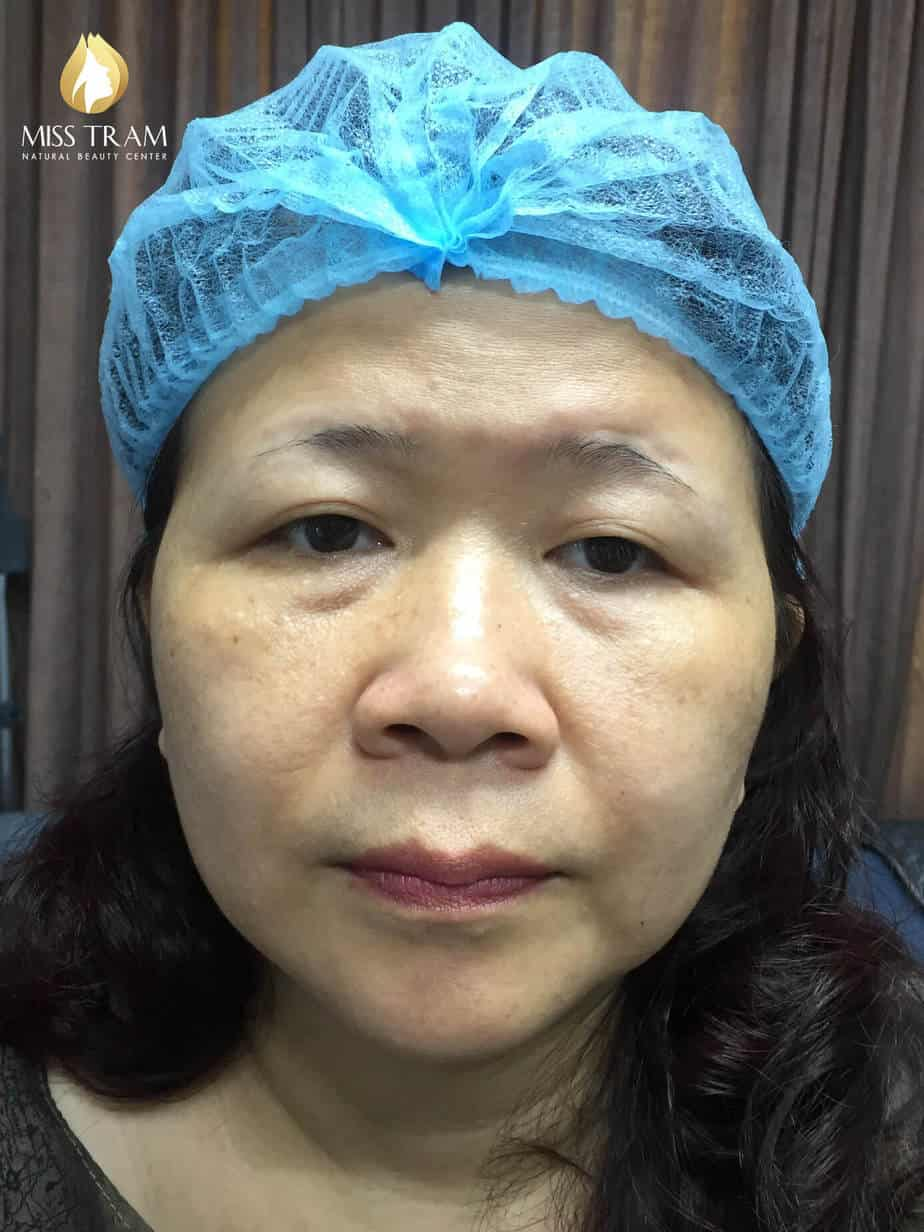 Before And After Sculpting Beautiful Queen's Eyebrows For Women 2