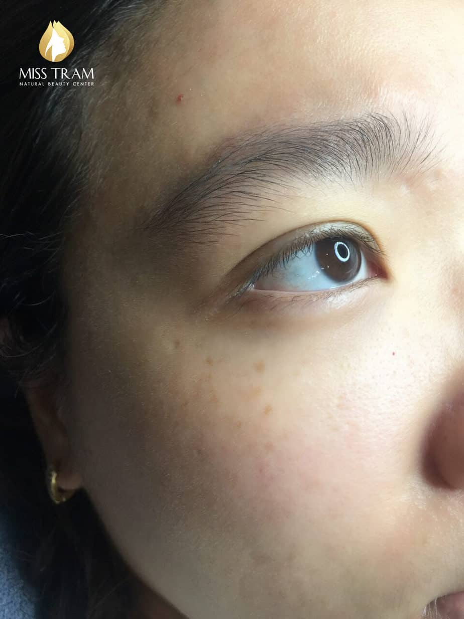 Before and After Results of Beautiful Eyelid Spray for Women 2