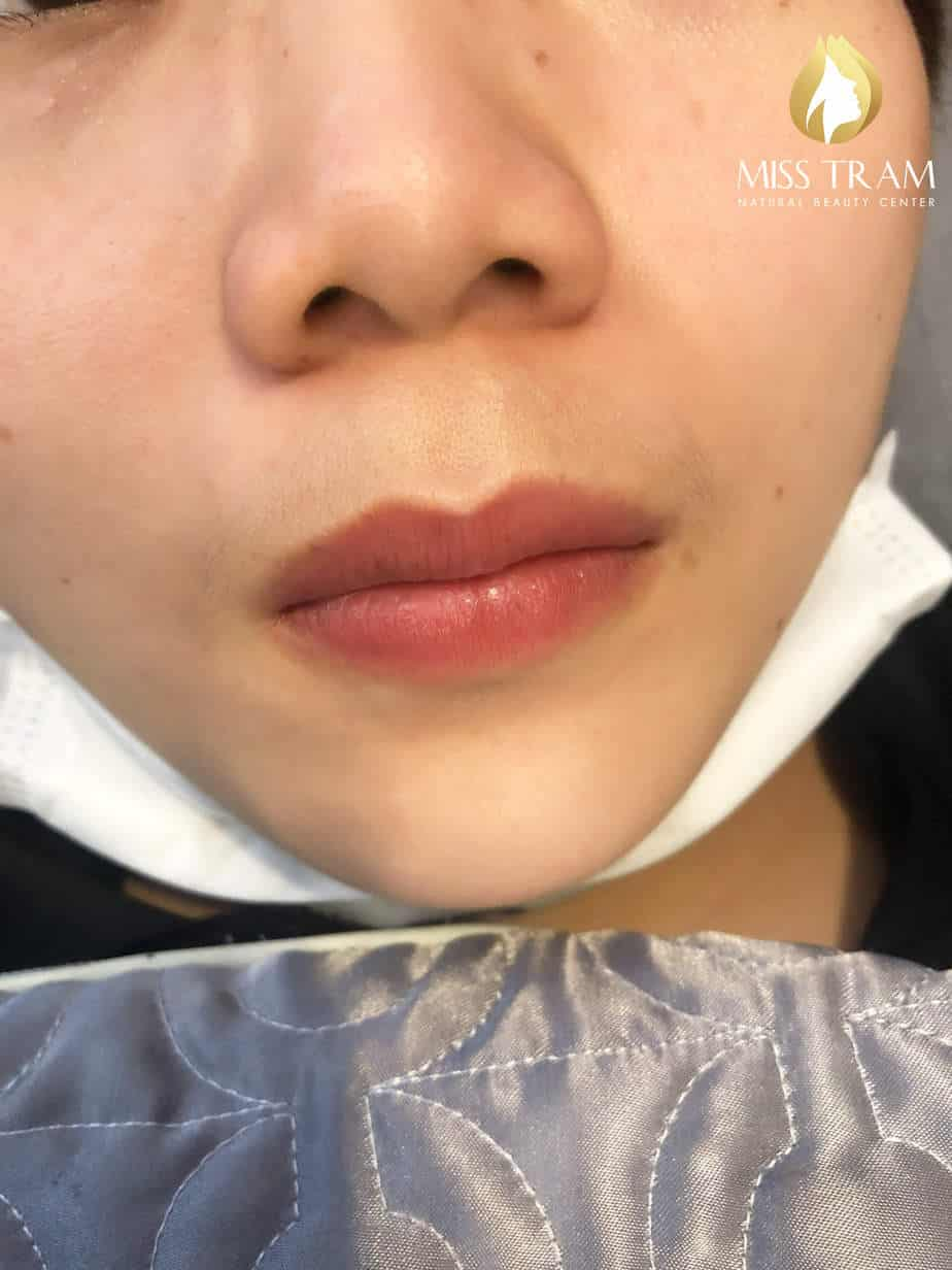 Before And After Treatment Of Intensive - Spraying Collagen Lips For Women 2