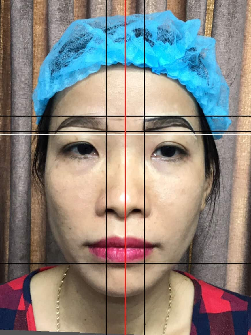 Before And After Lifting Your Face - Sculpting Beautiful Eyebrows For Women 3