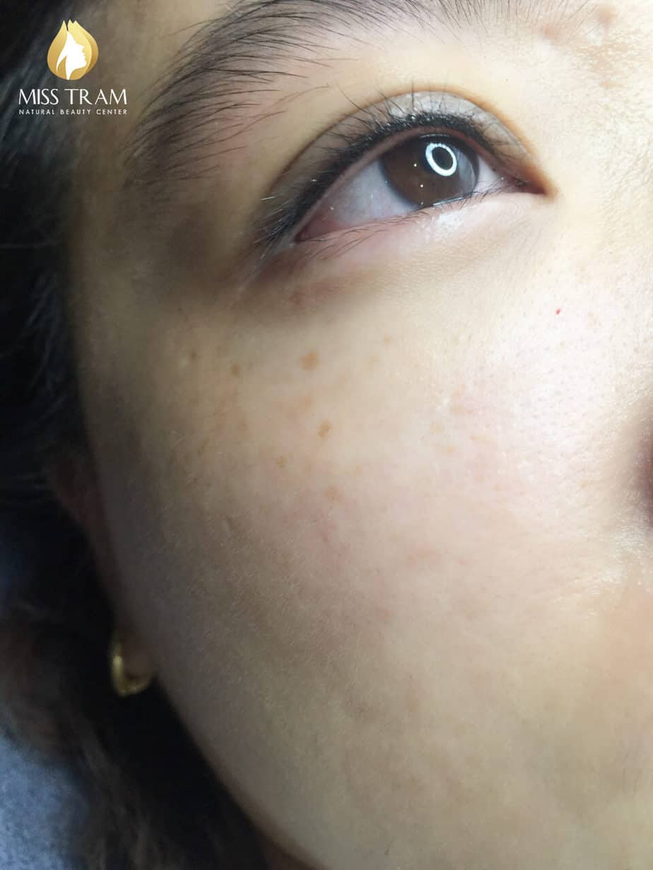 Before and After Results of Beautiful Eyelid Spray for Women 4